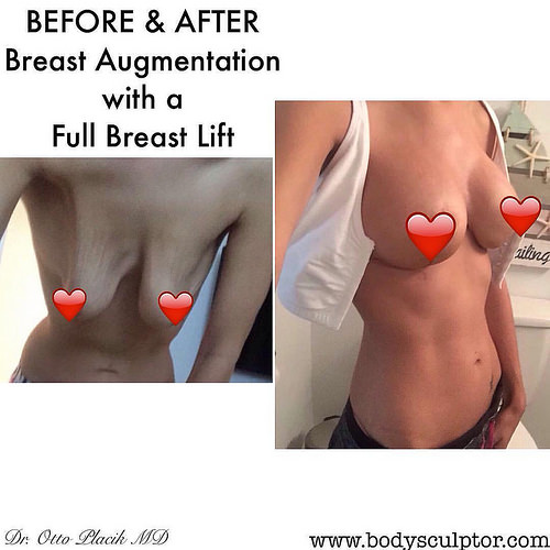Something breast actives results have